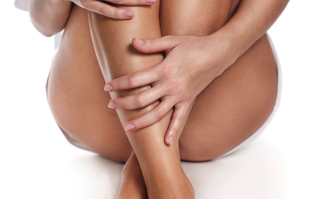 You don't have to suffer with the embarrassment of varicose veins any longer